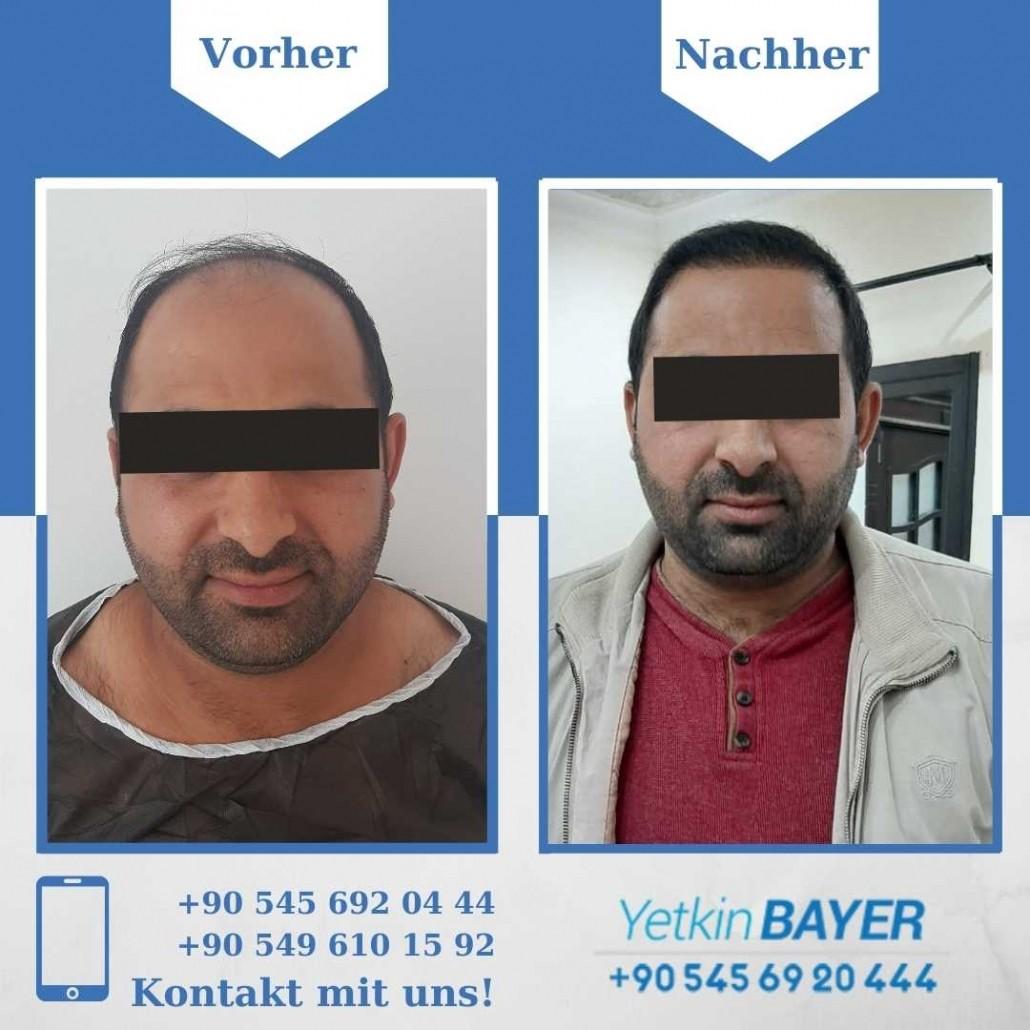 Haartransplantation Türkei Vorher Nachher Ergebnisse 24