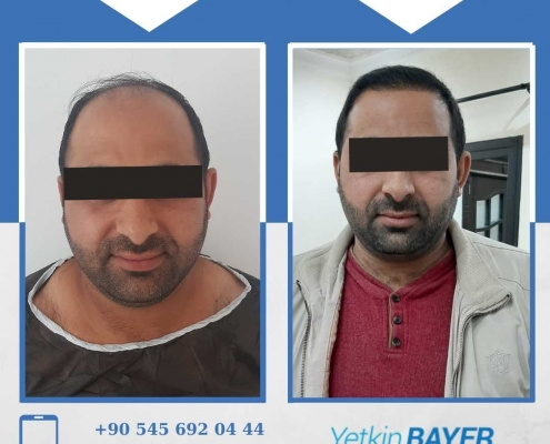 Haartransplantation: Vorher-Nachher-Bilder & Erfahrungen 12