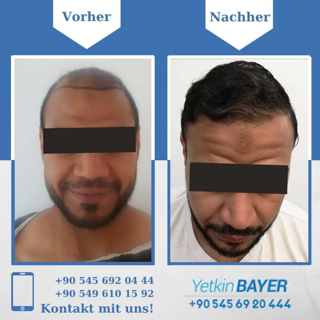 Haartransplantation Türkei Vorher Nachher Ergebnisse 26