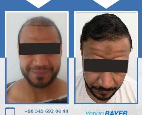 Haartransplantation: Vorher-Nachher-Bilder & Erfahrungen 13