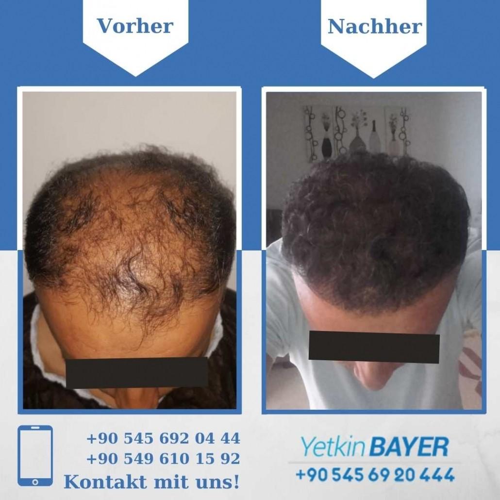 Haartransplantation Türkei Vorher Nachher Ergebnisse 23