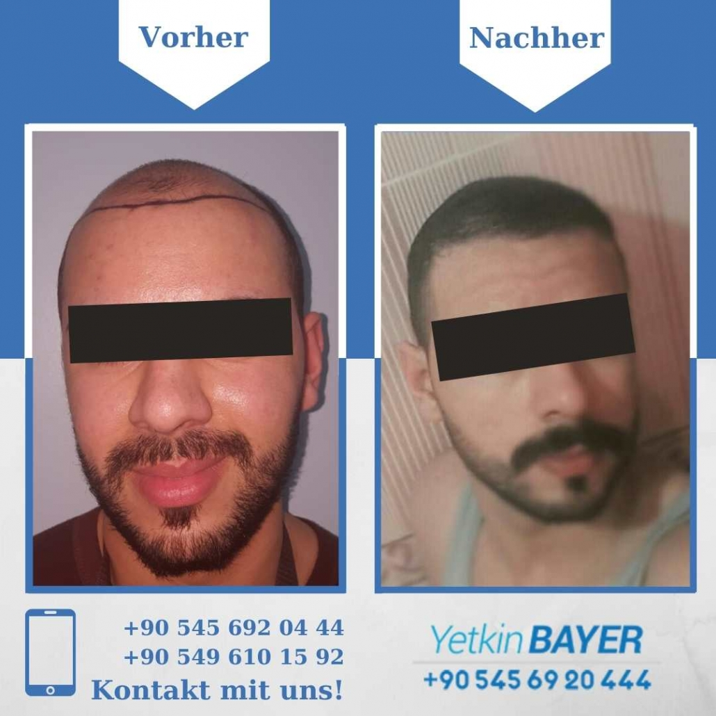 Haartransplantation Türkei Vorher Nachher Ergebnisse 21