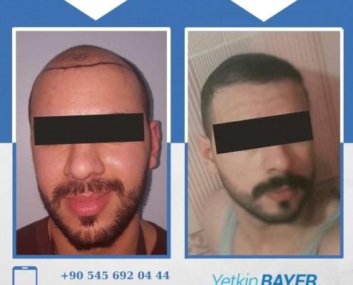 Haartransplantation: Vorher-Nachher-Bilder & Erfahrungen 16