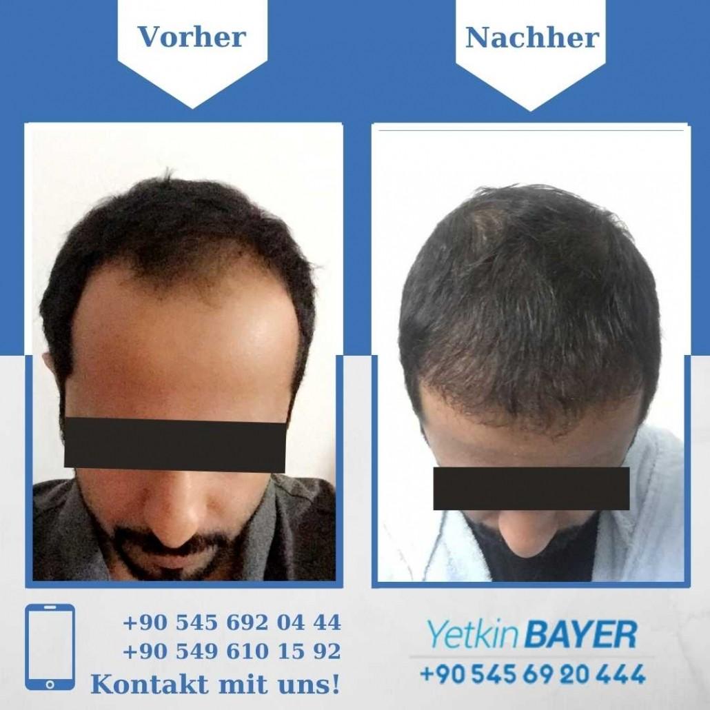 Haartransplantation Türkei Vorher Nachher Ergebnisse 20