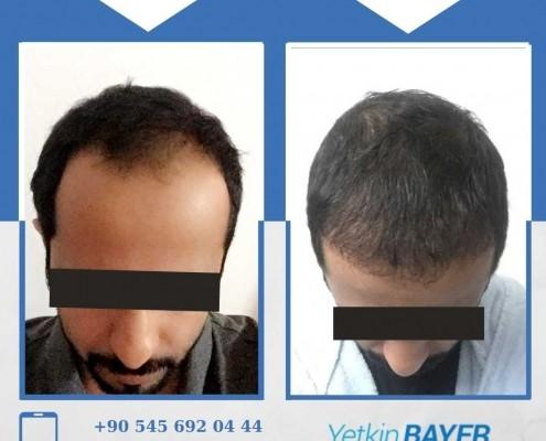 Haartransplantation: Vorher-Nachher-Bilder & Erfahrungen 17