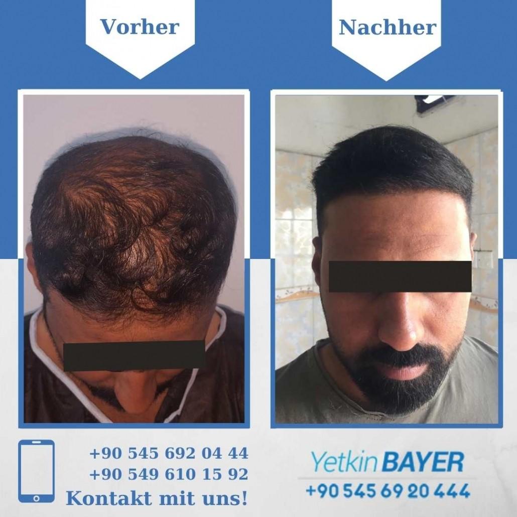 Haartransplantation Türkei Vorher Nachher Ergebnisse 19