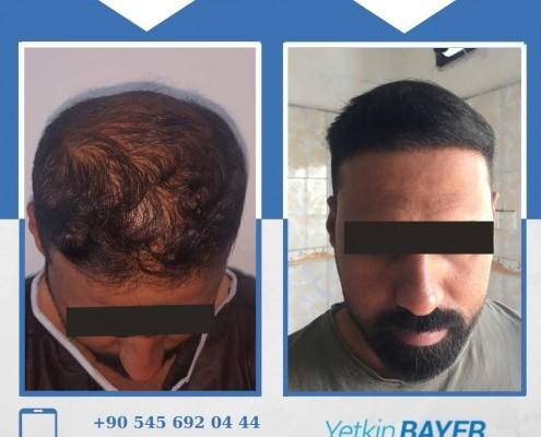 Haartransplantation: Vorher-Nachher-Bilder & Erfahrungen 18