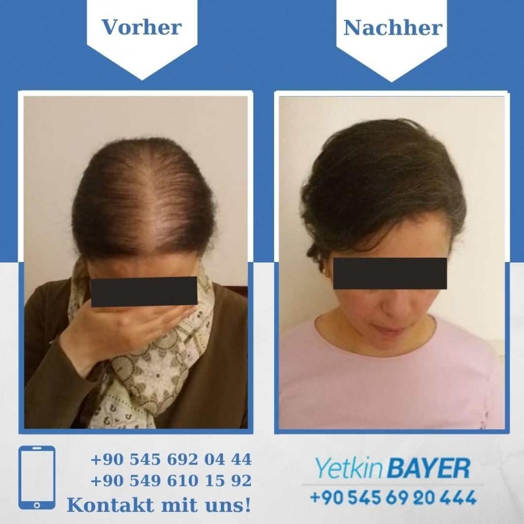 Haartransplantation Türkei Vorher Nachher Ergebnisse 18