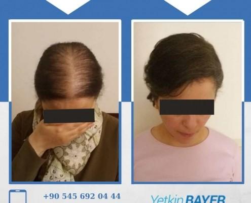 Haartransplantation: Vorher-Nachher-Bilder & Erfahrungen 19