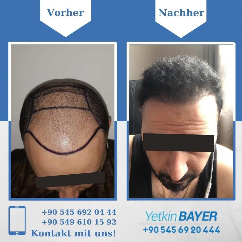 Haartransplantation Türkei Vorher Nachher Ergebnisse 28