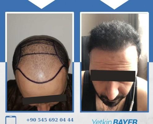 Haartransplantation: Vorher-Nachher-Bilder & Erfahrungen 2