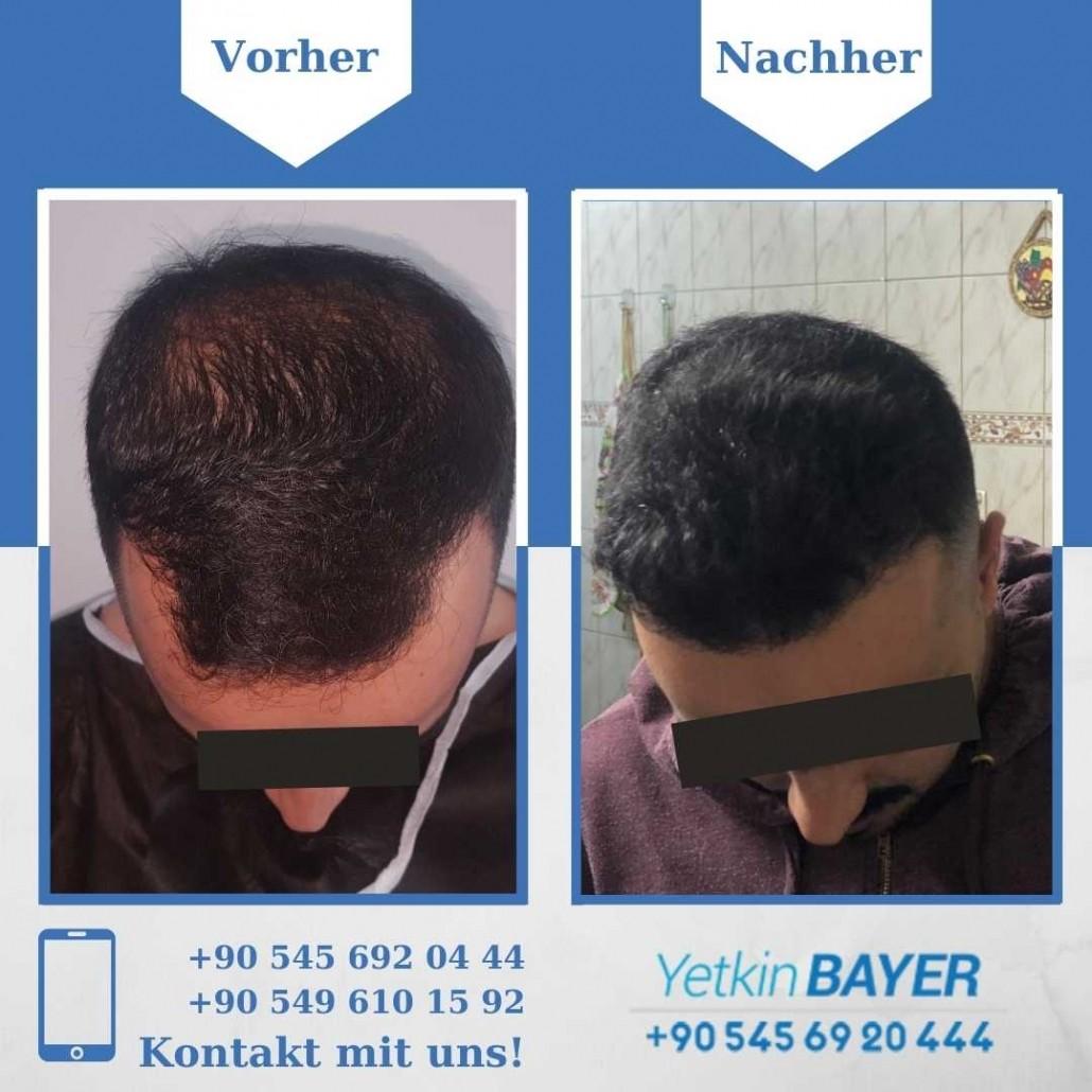 Haartransplantation Türkei Vorher Nachher Ergebnisse 17