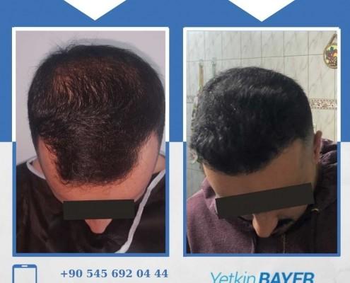 Haartransplantation: Vorher-Nachher-Bilder & Erfahrungen 20