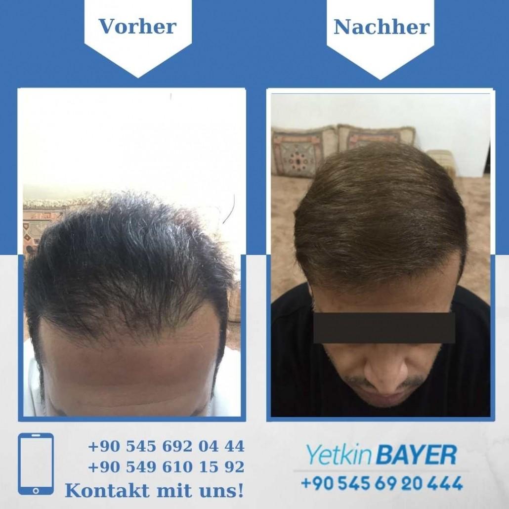 Haartransplantation Türkei Vorher Nachher Ergebnisse 16