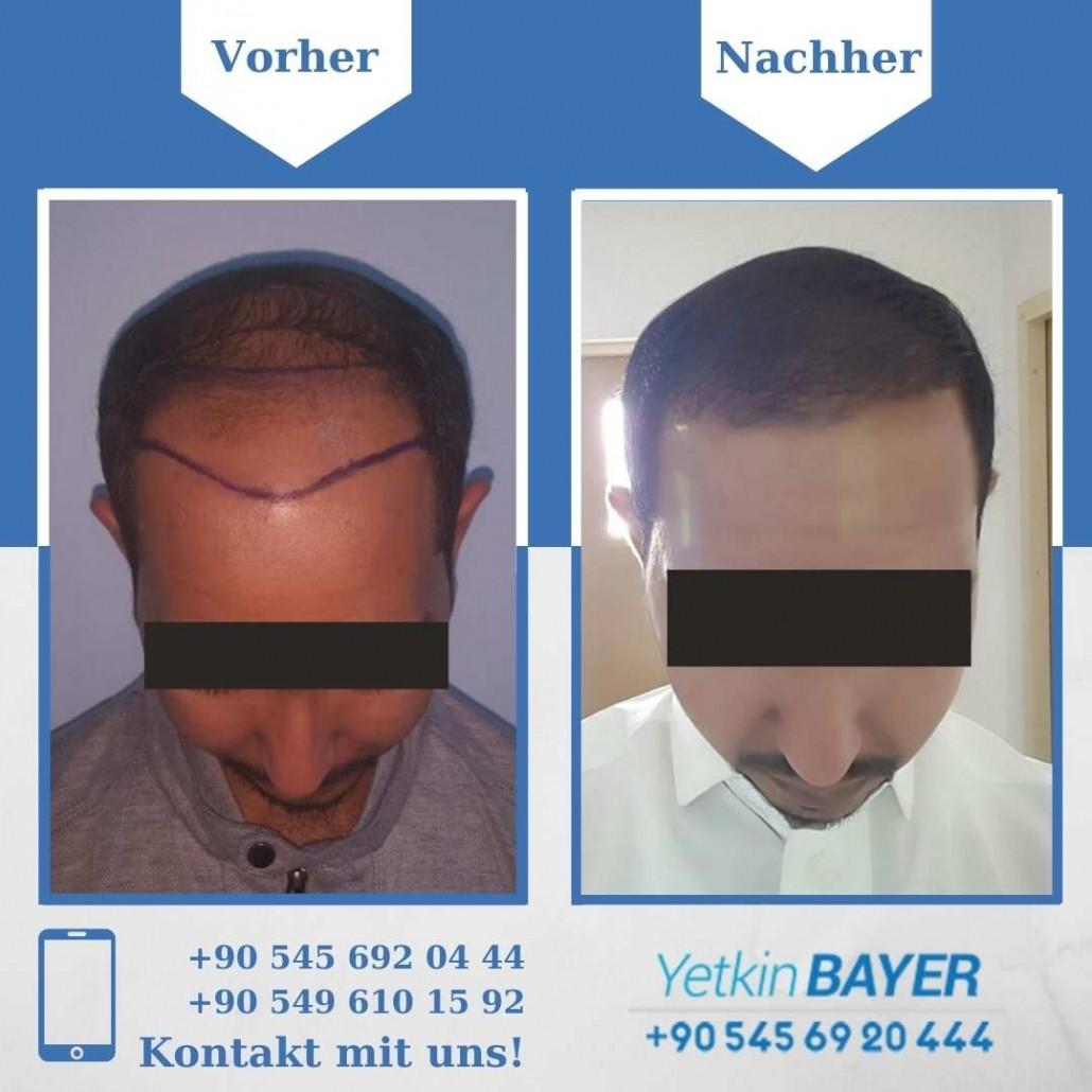 Haartransplantation Türkei Vorher Nachher Ergebnisse 15