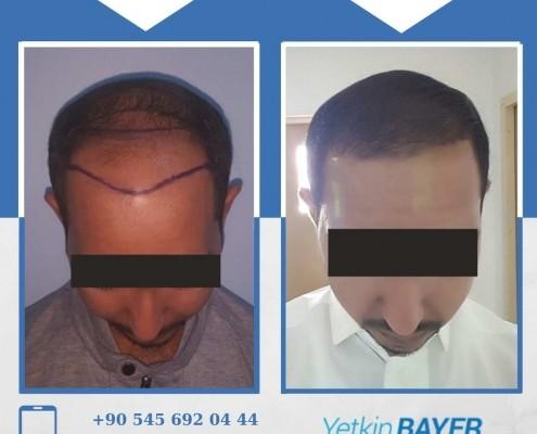 Haartransplantation: Vorher-Nachher-Bilder & Erfahrungen 22