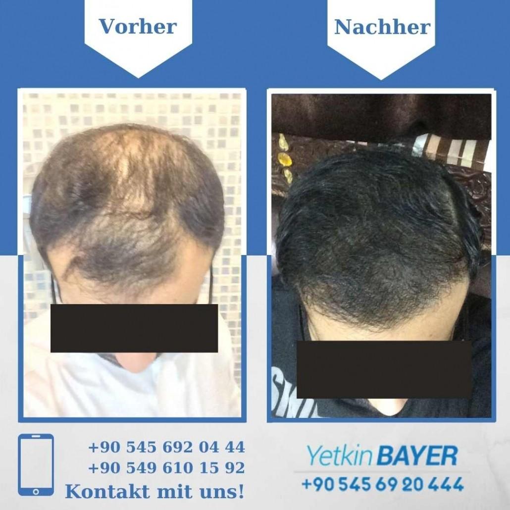 Haartransplantation Türkei Vorher Nachher Ergebnisse 3