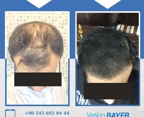 Haartransplantation: Vorher-Nachher-Bilder & Erfahrungen 23