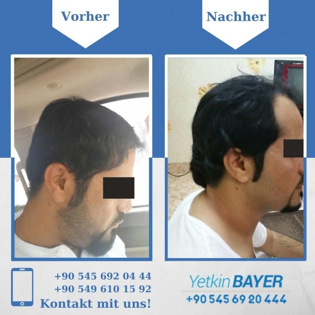 Haartransplantation Türkei Vorher Nachher Ergebnisse 4