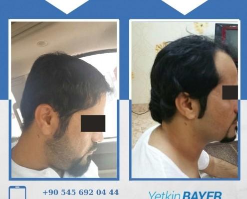 Haartransplantation: Vorher-Nachher-Bilder & Erfahrungen 24