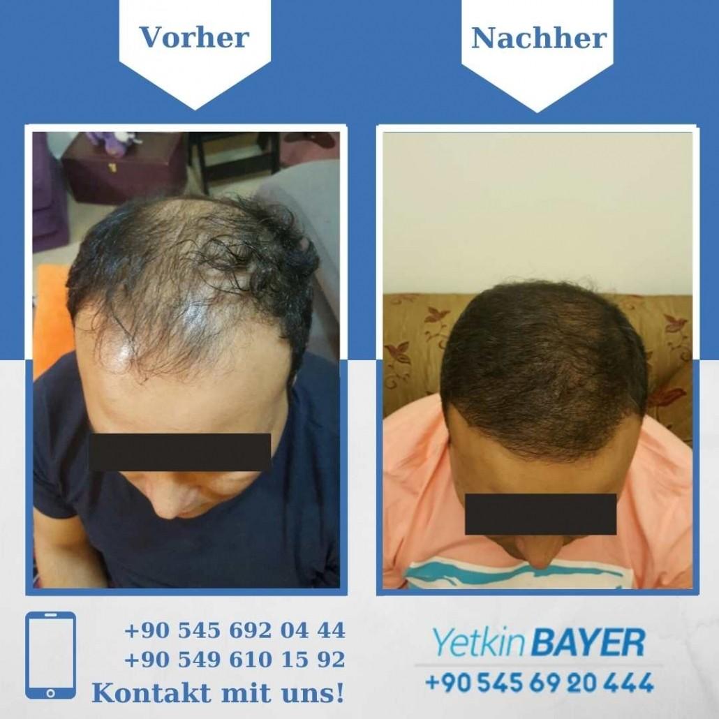 Haartransplantation Türkei Vorher Nachher Ergebnisse 5