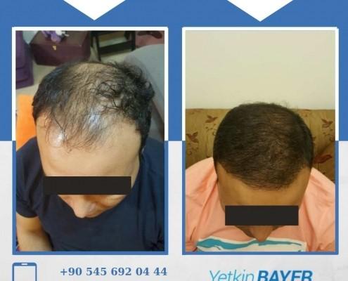 Haartransplantation: Vorher-Nachher-Bilder & Erfahrungen 25