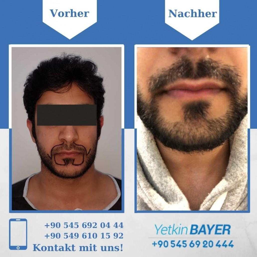 Haartransplantation Türkei Vorher Nachher Ergebnisse 6