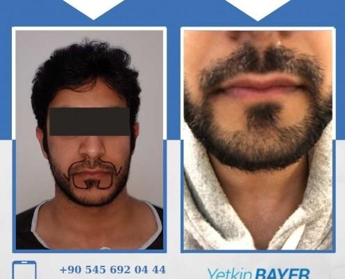 Haartransplantation: Vorher-Nachher-Bilder & Erfahrungen 26