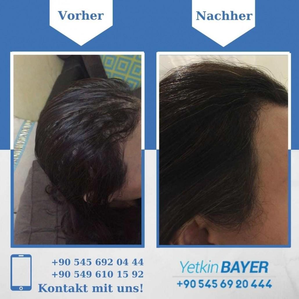 Haartransplantation Türkei Vorher Nachher Ergebnisse 7