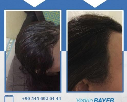 Haartransplantation: Vorher-Nachher-Bilder & Erfahrungen 27