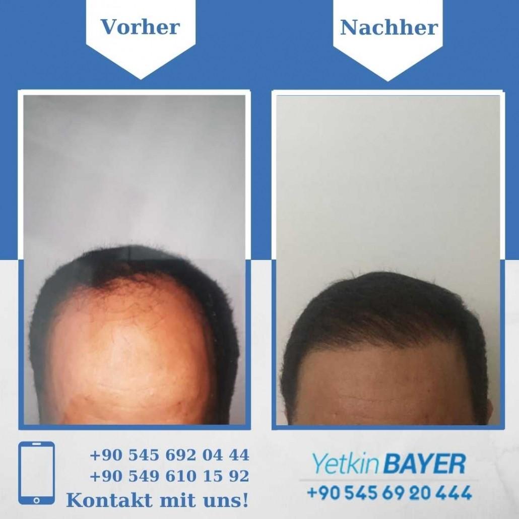 Haartransplantation Türkei Vorher Nachher Ergebnisse 8
