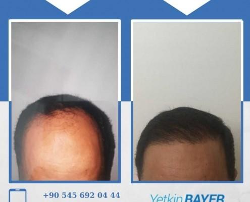 Haartransplantation: Vorher-Nachher-Bilder & Erfahrungen 28