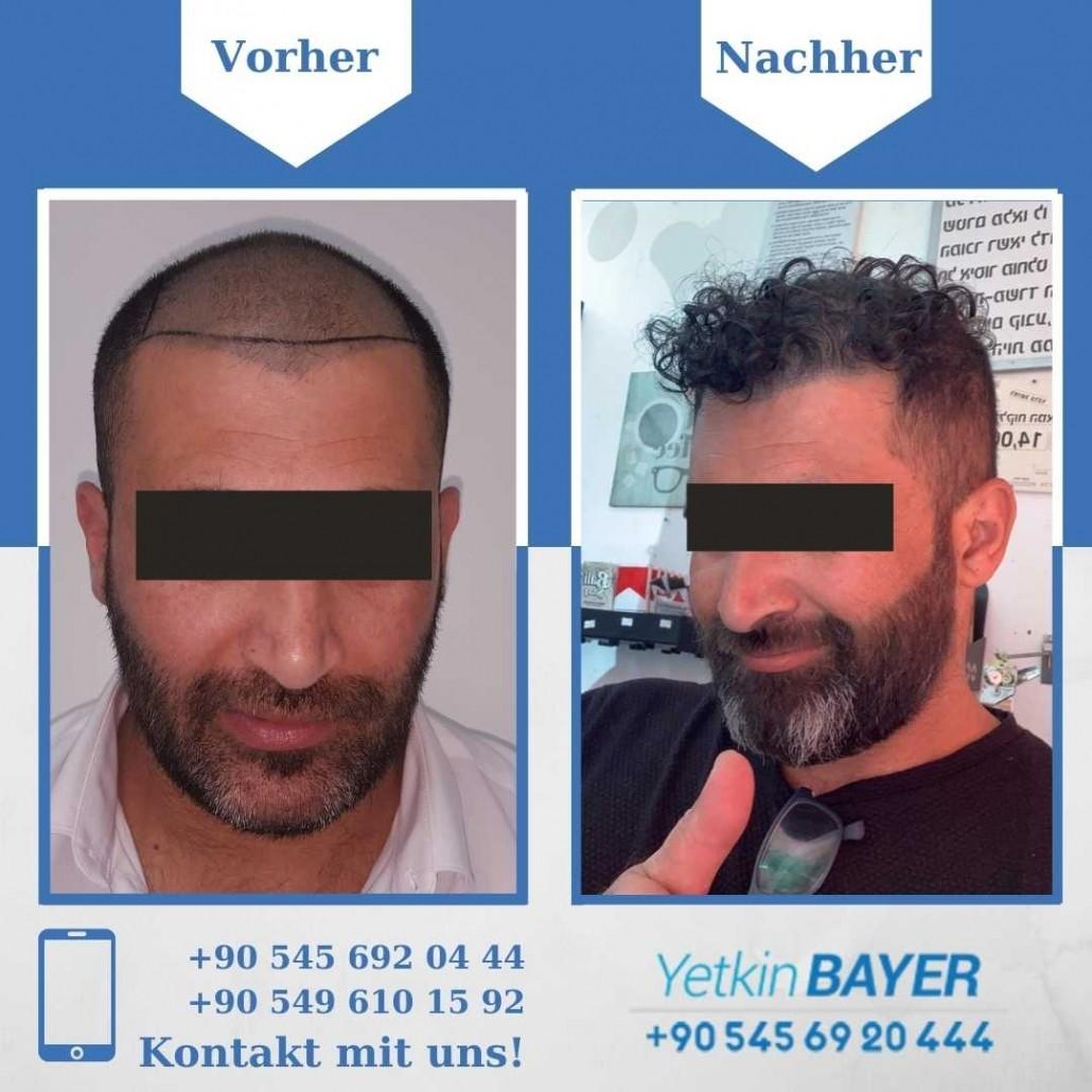 Haartransplantation Türkei Vorher Nachher Ergebnisse 9