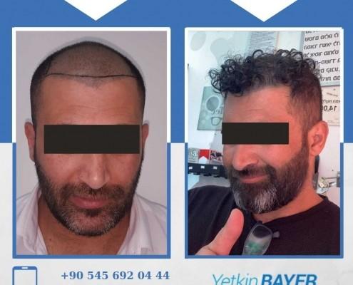 Haartransplantation: Vorher-Nachher-Bilder & Erfahrungen 29