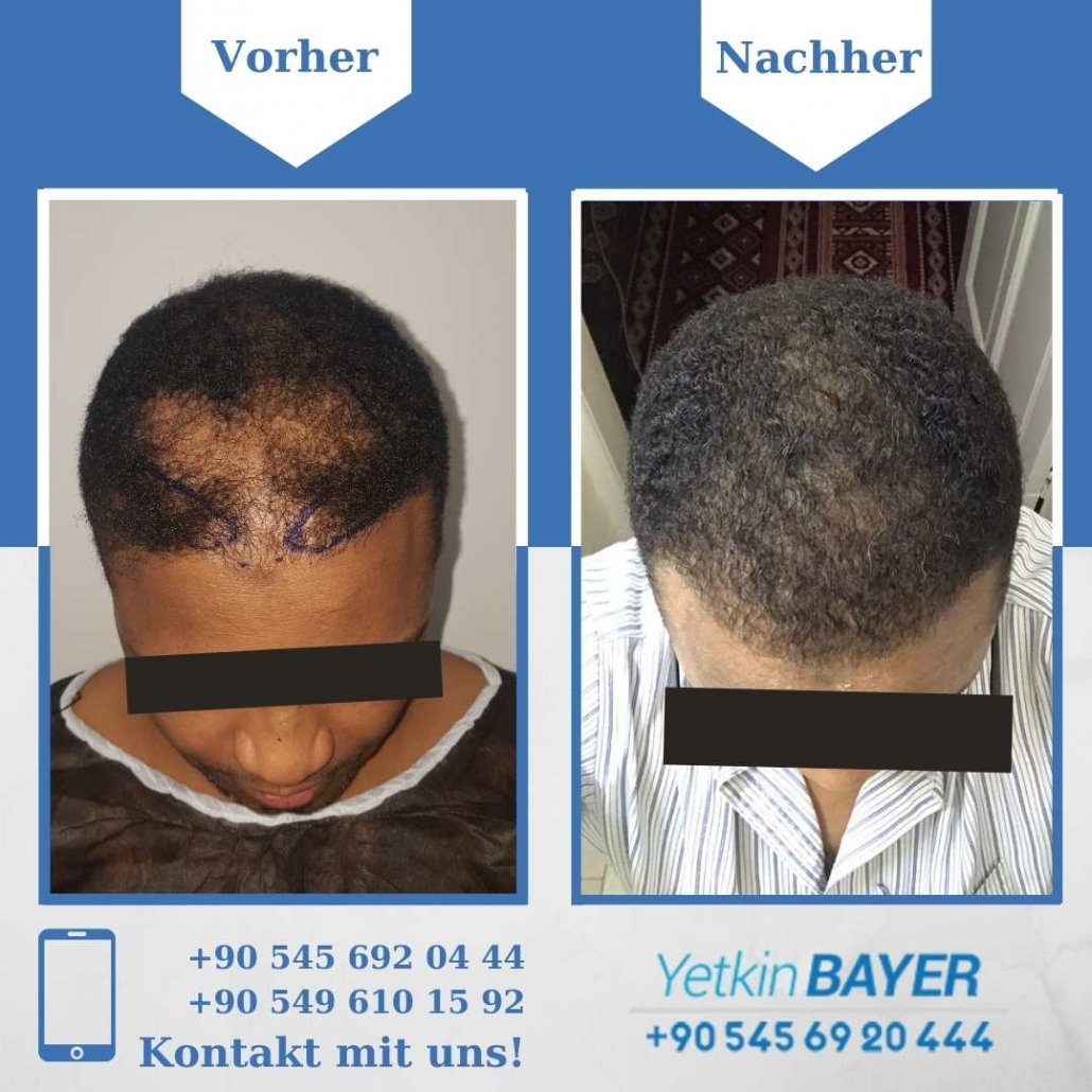 Haartransplantation Türkei Vorher Nachher Ergebnisse 29