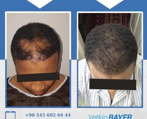 Haartransplantation: Vorher-Nachher-Bilder & Erfahrungen 3