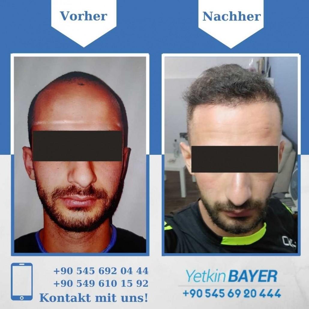 Haartransplantation Türkei Vorher Nachher Ergebnisse 10