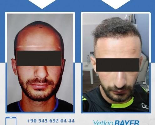 Haartransplantation: Vorher-Nachher-Bilder & Erfahrungen 30