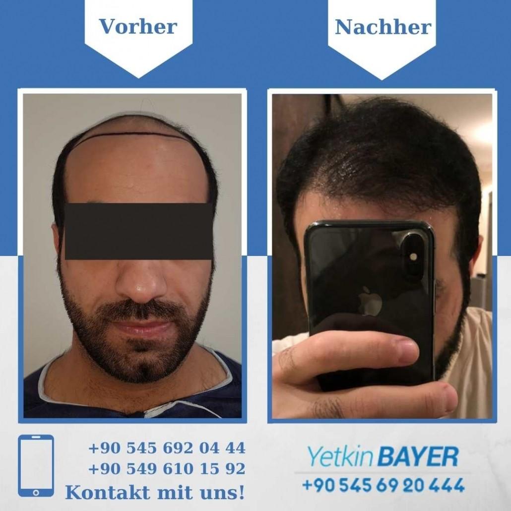 Haartransplantation Türkei Vorher Nachher Ergebnisse 12