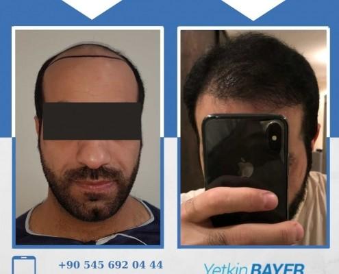 Haartransplantation: Vorher-Nachher-Bilder & Erfahrungen 31