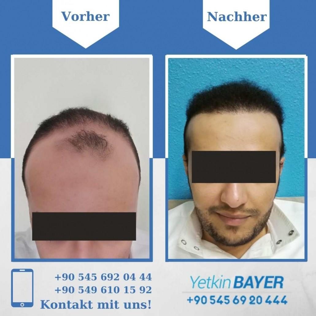 Haartransplantation Türkei Vorher Nachher Ergebnisse 11