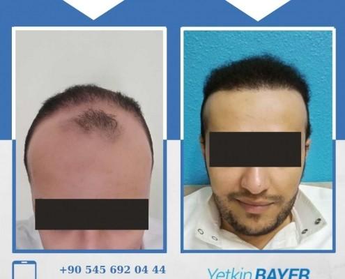 Haartransplantation: Vorher-Nachher-Bilder & Erfahrungen 32