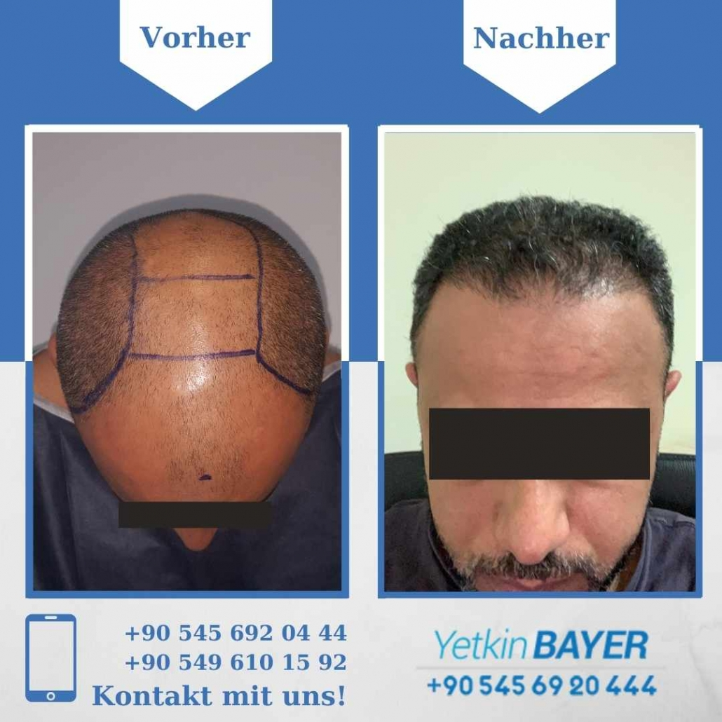 Haartransplantation Türkei Vorher Nachher Ergebnisse 13