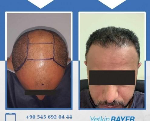 Haartransplantation: Vorher-Nachher-Bilder & Erfahrungen 33
