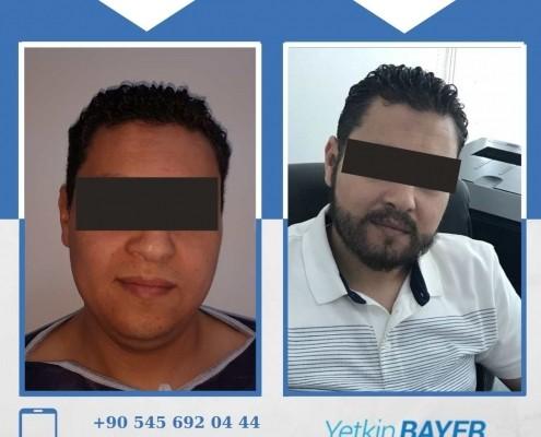Haartransplantation: Vorher-Nachher-Bilder & Erfahrungen 34