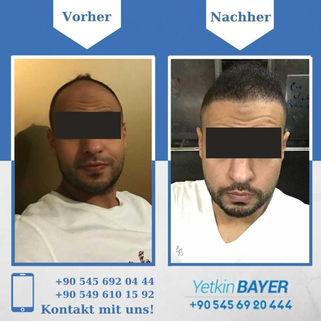 Haartransplantation Türkei Vorher Nachher Ergebnisse 2