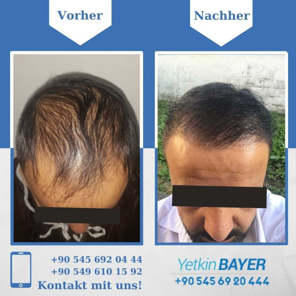 Haartransplantation Türkei Vorher Nachher Ergebnisse 30