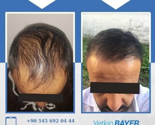 Haartransplantation: Vorher-Nachher-Bilder & Erfahrungen 4