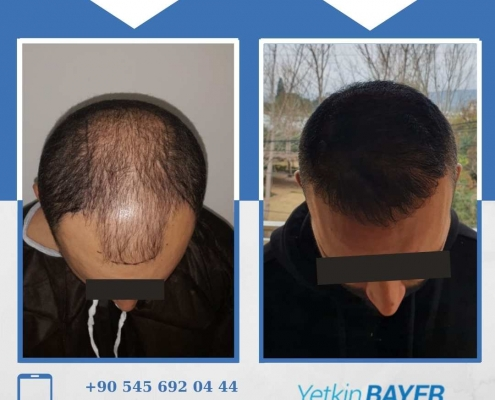 Haartransplantation: Vorher-Nachher-Bilder & Erfahrungen 36