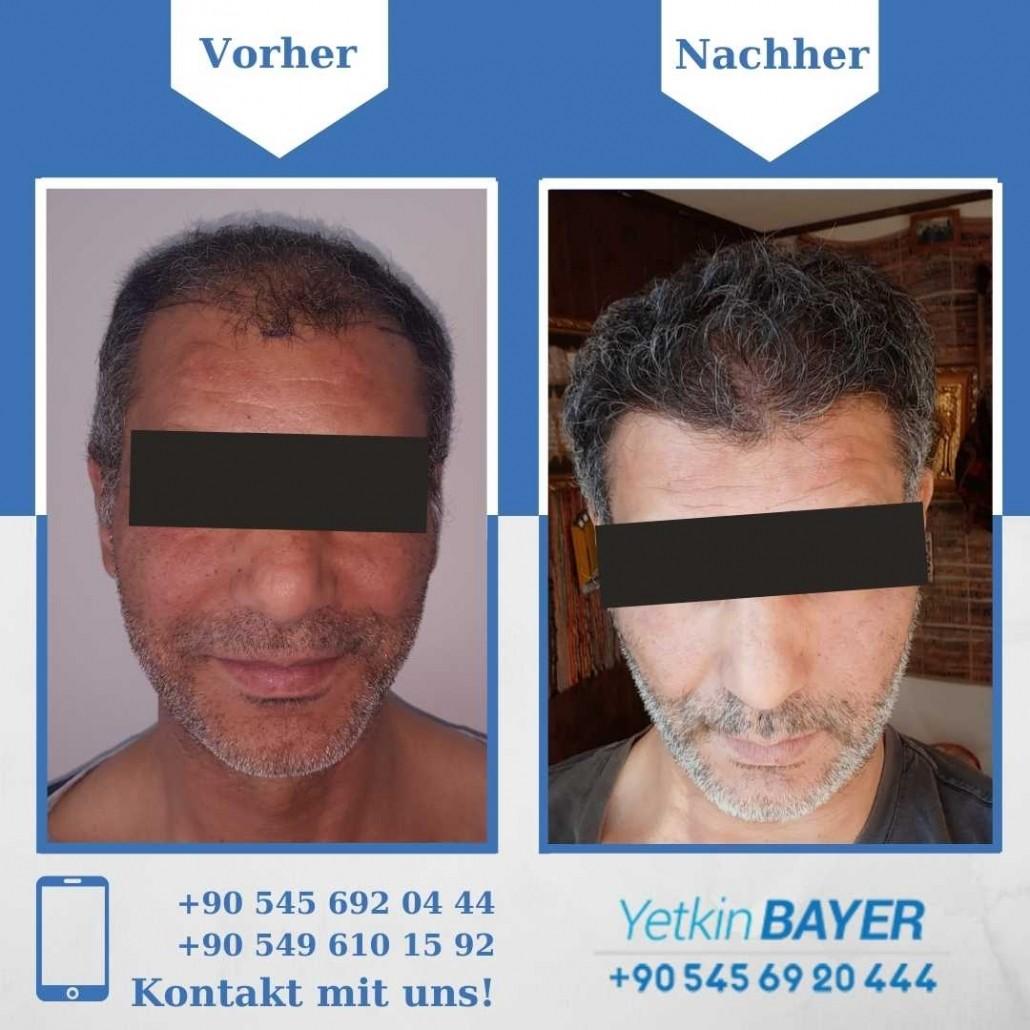 Haartransplantation Türkei Vorher Nachher Ergebnisse 31